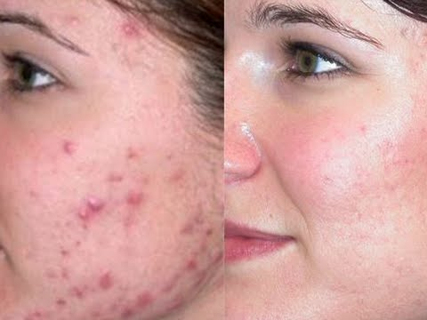 Get rid of acne scars i how to get rid of pimple scars overnight i get rid of acne scars i how to get rid of pimple scars overnight i home remedies acne treatment ccuart Image collections