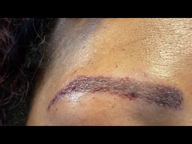 Dallas African-American Eyebrow Transplant Closeup One Day After