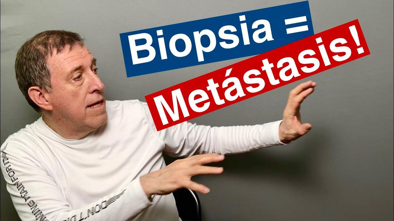 Biopsia de próstata causa Metástasis