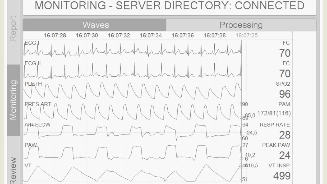 Mechanical Ventilation Monitoring Case 2 Patient PNEUMONIA