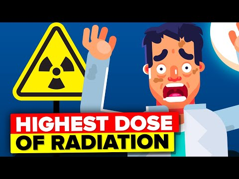 Man Receives Highest Dose of Nuclear Radiation - This Is What Happened To Him