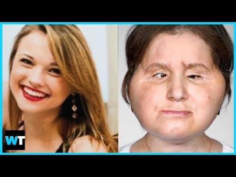 You Won't Believe Katie Stubblefield's Historic FACE TRANSPLANT!