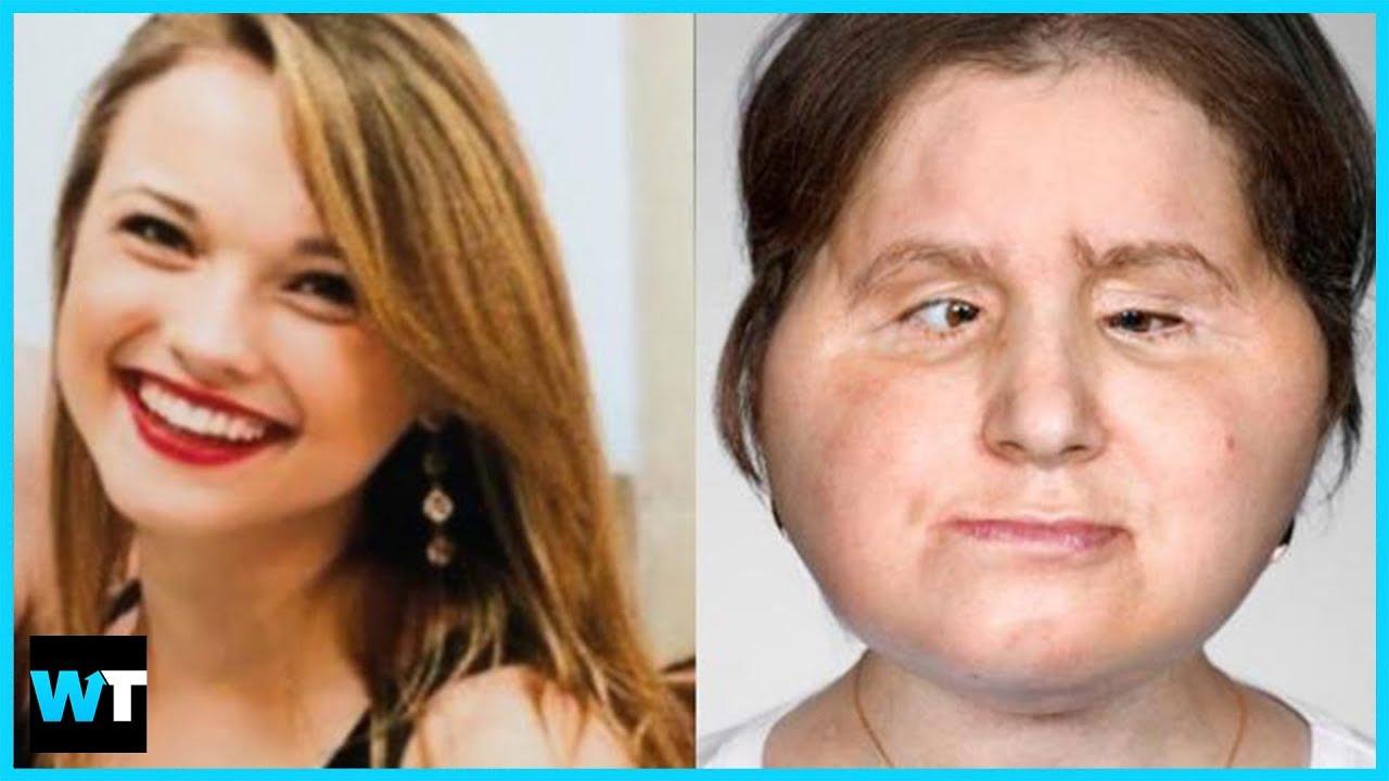 You Wont Believe Katie Stubblefields Historic Face Transplant