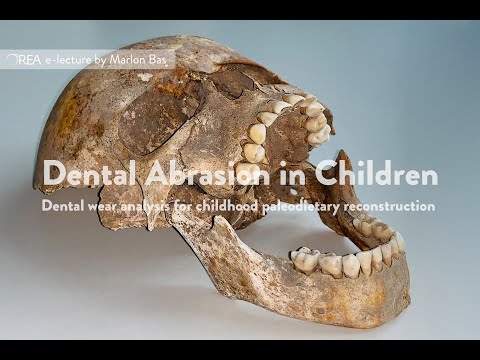 Dental Abrasion in Children by Marlon Bas - OREA e-lecture May 2020