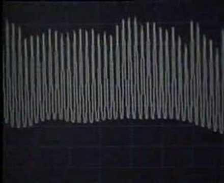 Erbium-doped fibre amplifiers
