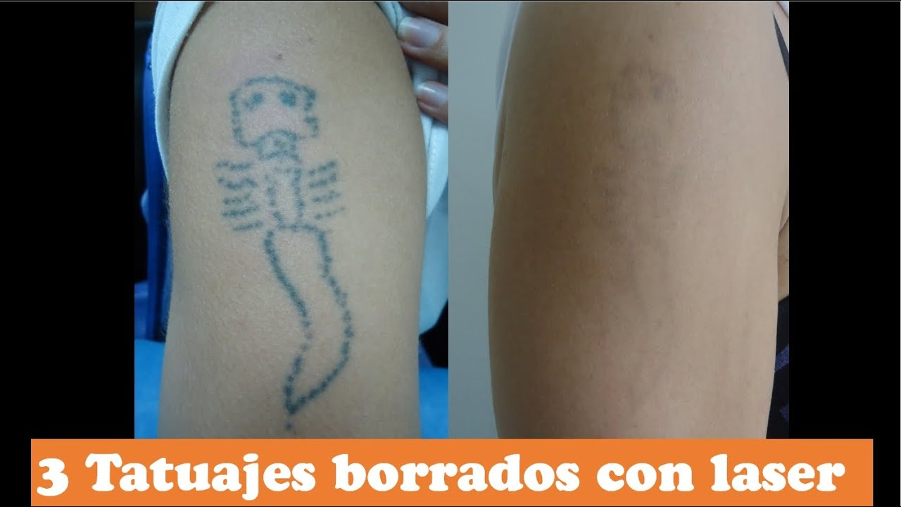 3 Tatuajes Borrados Con Laser Eliminar Tatuajes Sin Cicatrices