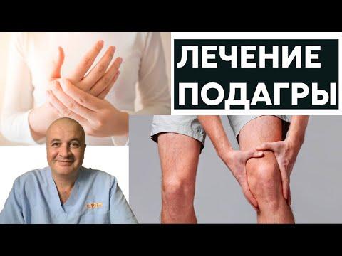 Как лечить подагру и ревматоидный артрит? 4 основных правила!