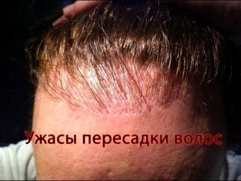 Тюмень пересадка волос цена