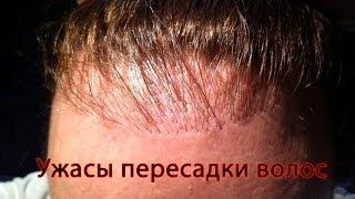 Ужасы пересадки волос