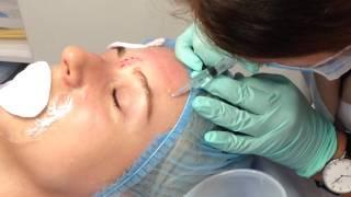 АирисКом обучение косметологии. Легкие филлеры - заполнение морщин в области лба