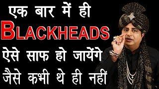 Blackheads जड़ से निकालने के लिए Remove Blackheads Permanently : Sanyasi Ayurveda