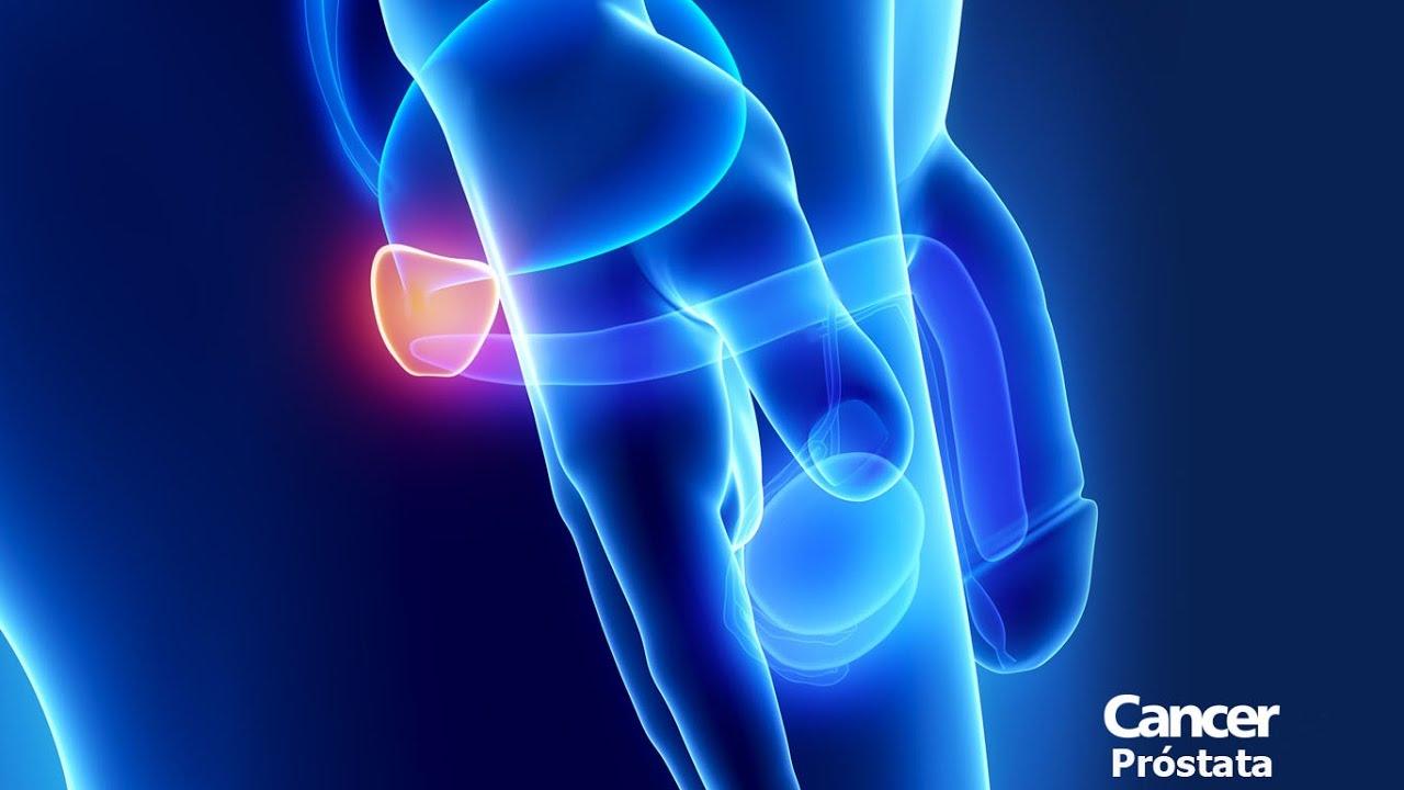 causas del cáncer de próstata en hindi
