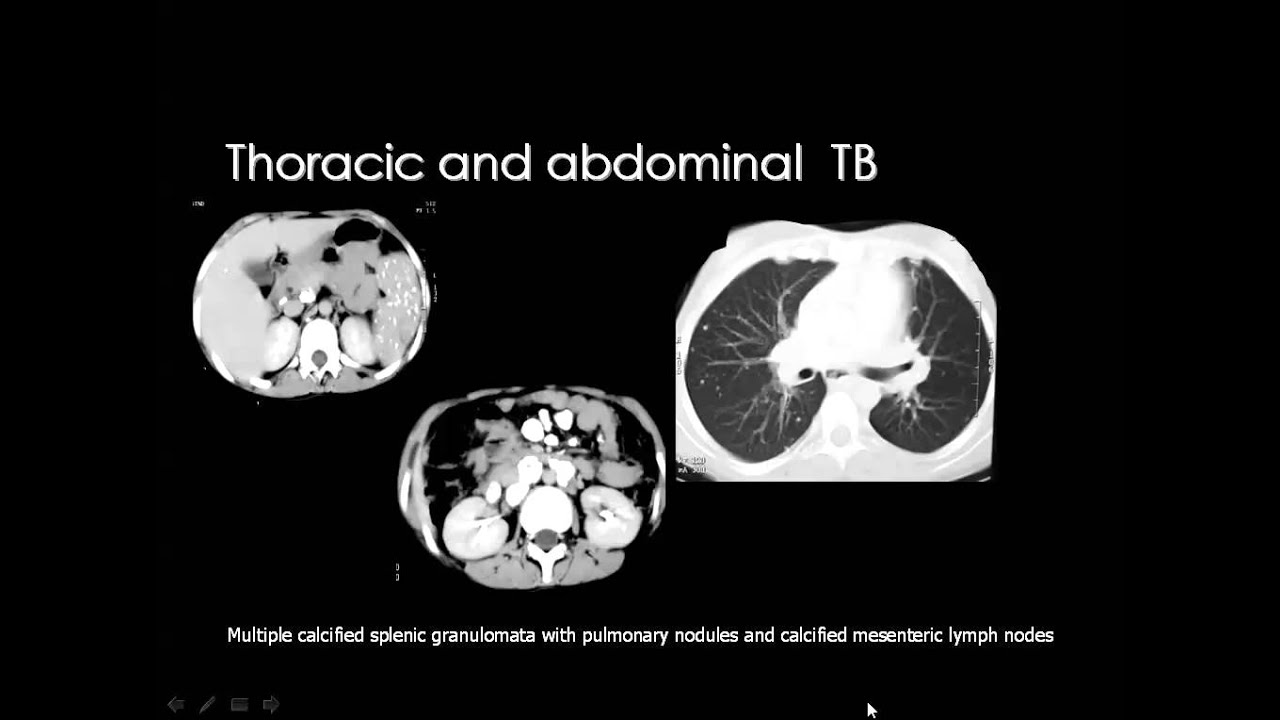 Imaging Of The Peritoneum Dre 12 Dr Mamdouh Mahfouz Youtube