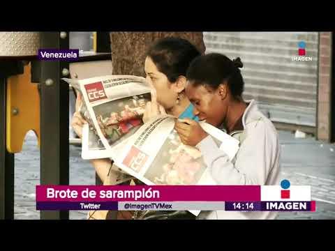 Brote de sarampión en Sudamerica por migrantes venezolanos | Noticias con Yuriria Sierra