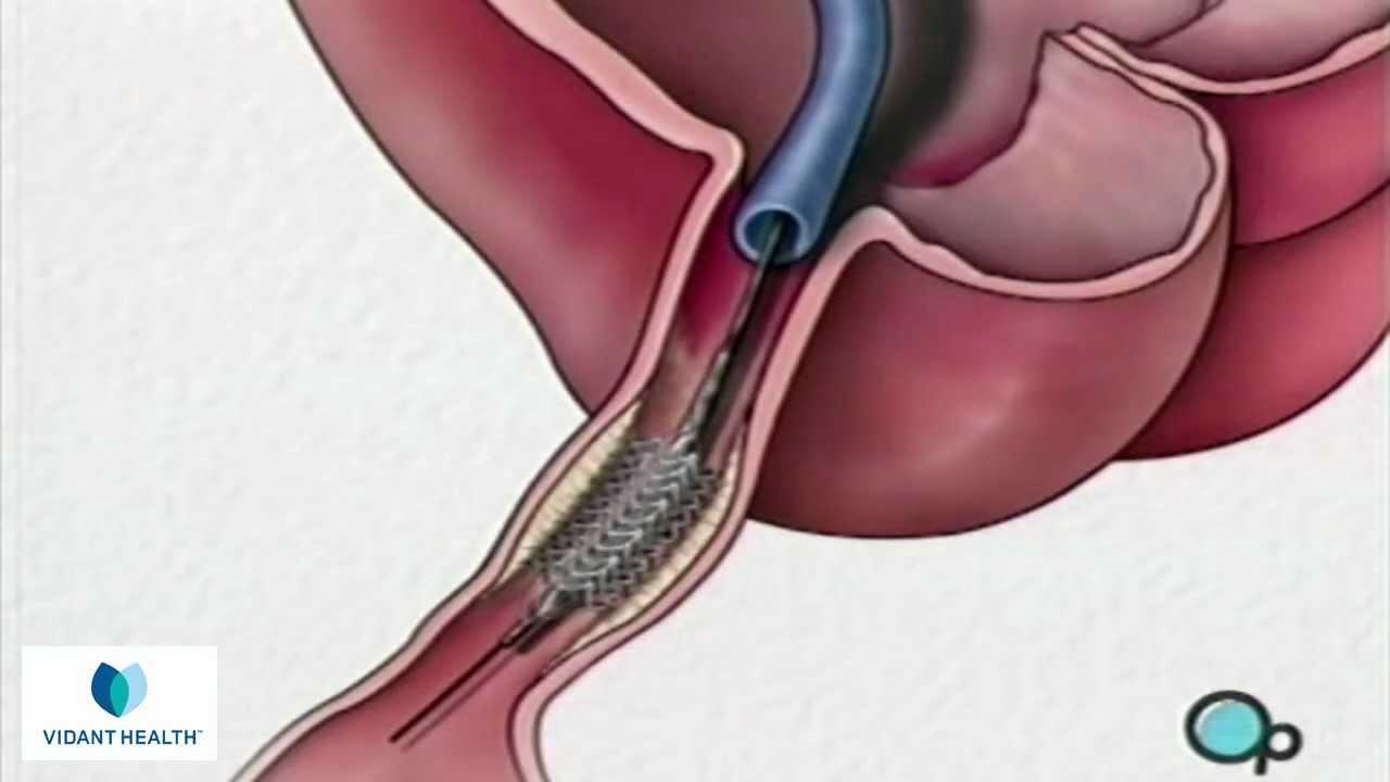 stent implantation coronary angioplasty vidant preop patient