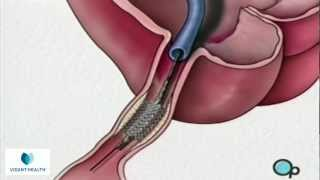 Stent Implantation Coronary Angioplasty Vidant PreOp® Patient Education