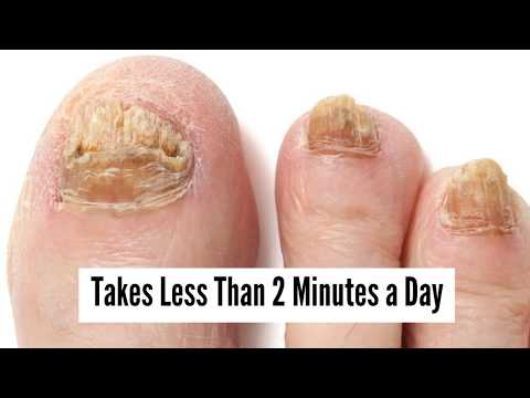 Toenail Fungus Treatment: Get Rid Of Toenail Fungus With These Easy Home Remedies