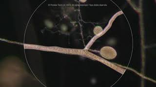 How Mycorrhizae Premier Tech works on the plant's root system