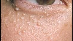 hqdefault - White Pimples Around My Eyes