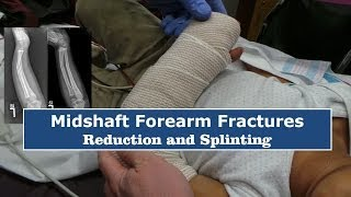 Reduction & Splinting of Forearm Fractures--Quick Version
