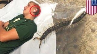 Подростку в ухо заползла сороконожка(, 2015-07-07T07:01:18.000Z)