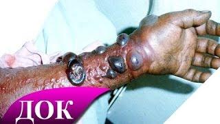 Эбола - Самый смертоносный вирус человечества. Документальный фильм