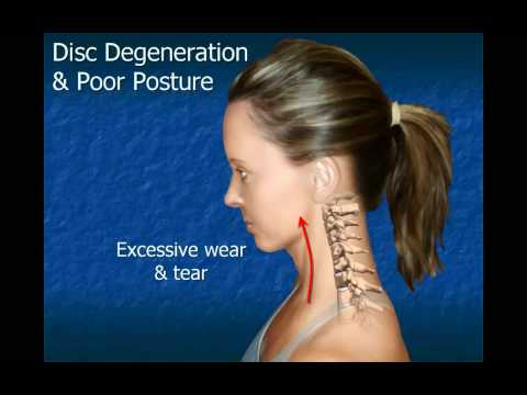 Cervical Disc Degeneration