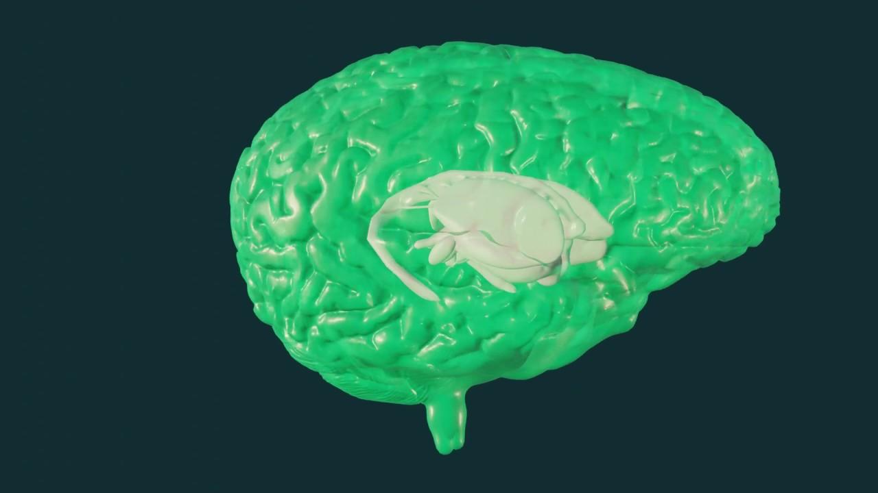 Gehirnimplantate