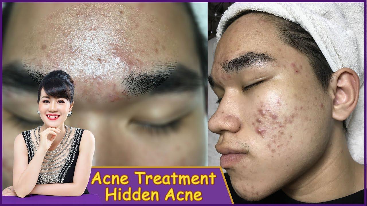 Acne Treatment | Điều trị mụn hiệu quả số 1 TPHCM | Hiền Vân Spa |Mụn bọc, mụn đầu đen|539