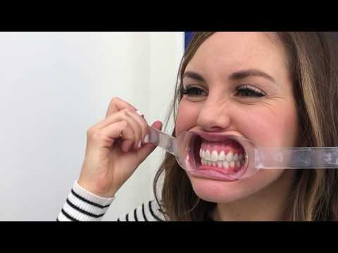 Invisalign Review: Everything You NEED To Know!