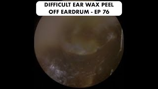 DIFFICULT EAR WAX REMOVAL OFF EARDRUM - EP 76