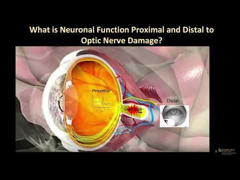 Dr. Randy Kardon Talks Optic Neuropathy and PhNR Testing