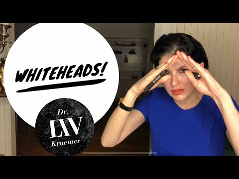 How To Stop Getting Whiteheads Longterm - By Dermatologist Dr LIV