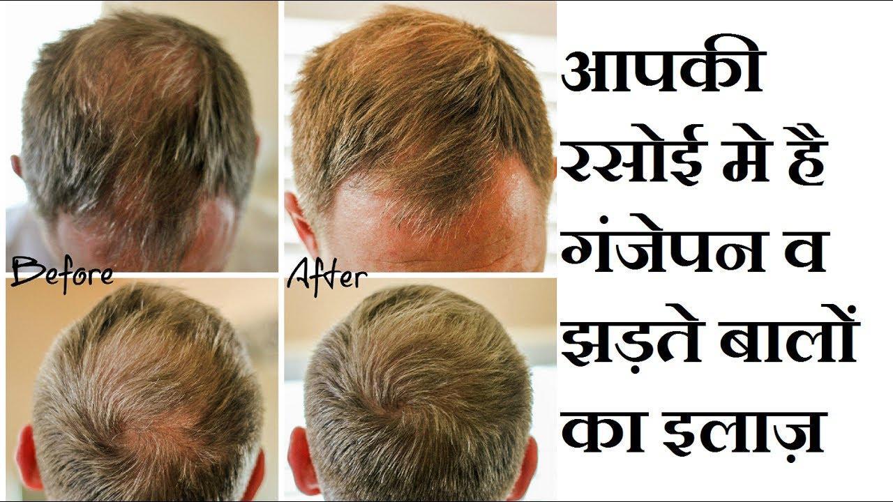 Onion Juice For Hair Regrowth  Hair Fall  Instant Growth YouTube - Onion juice for hair regrowth review