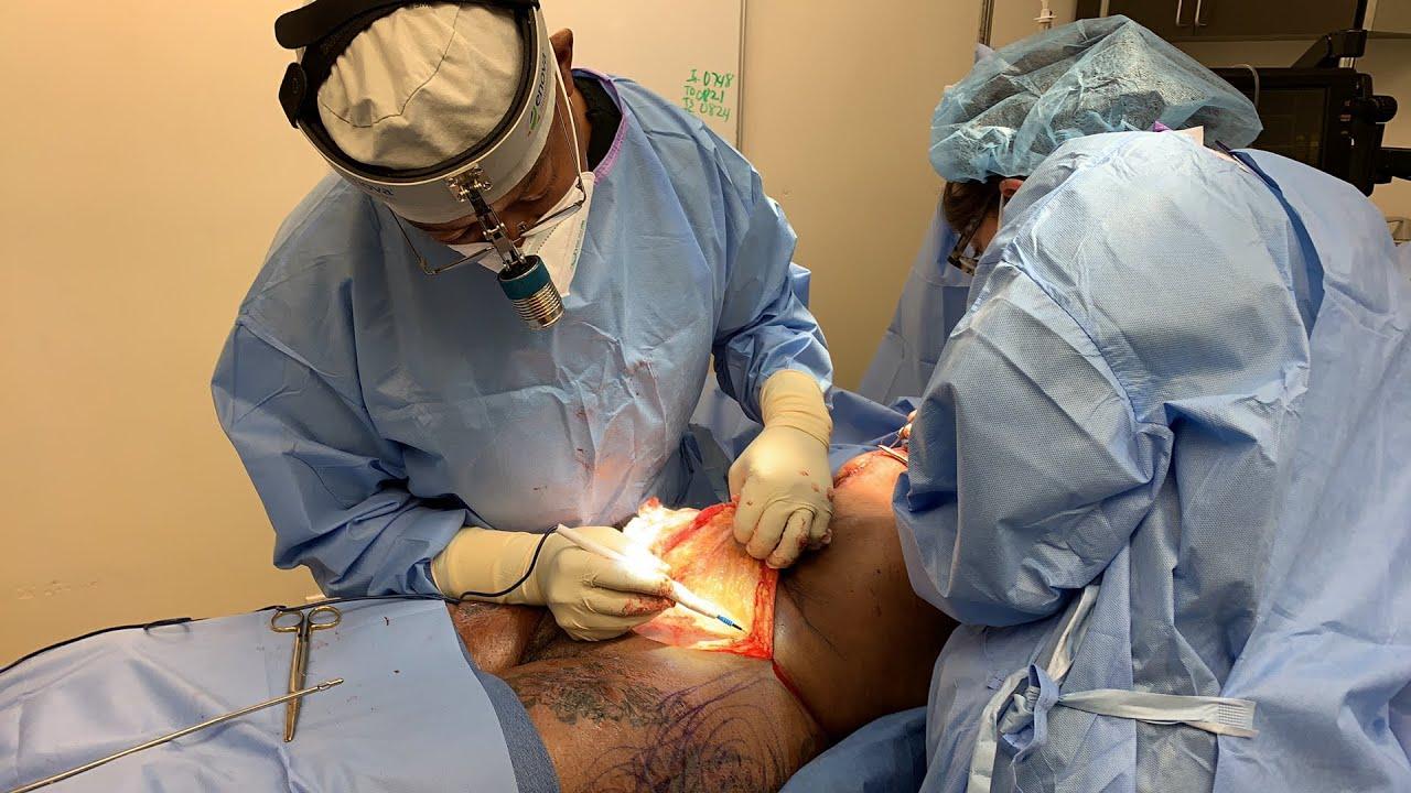Abdominoplasty/Mastopexy with Dr. Jones pt 02
