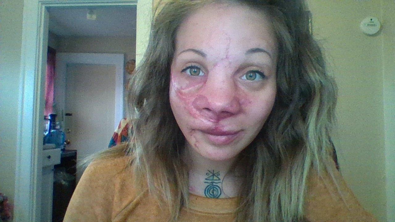Arteriovenous malformation facial jpg