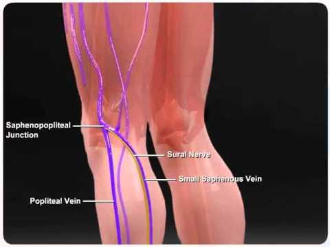 small saphenous vein - youtube, Human Body