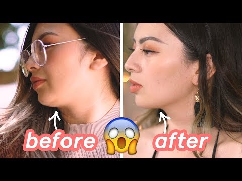 GOT RID OF MY DOUBLE CHIN✨ KYBELLA BEFORE AND AFTER EXPERIENCE / REVIEW