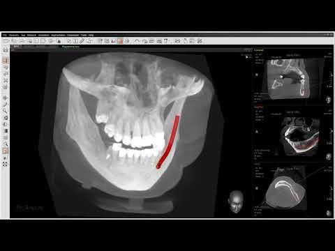 Планирование имплантации. Программа EZ3D2009. Стоматология