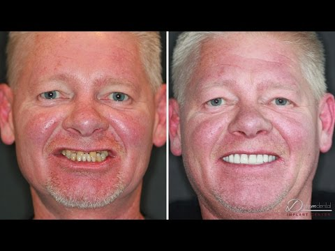 Dental implants review | Before and After Surgery