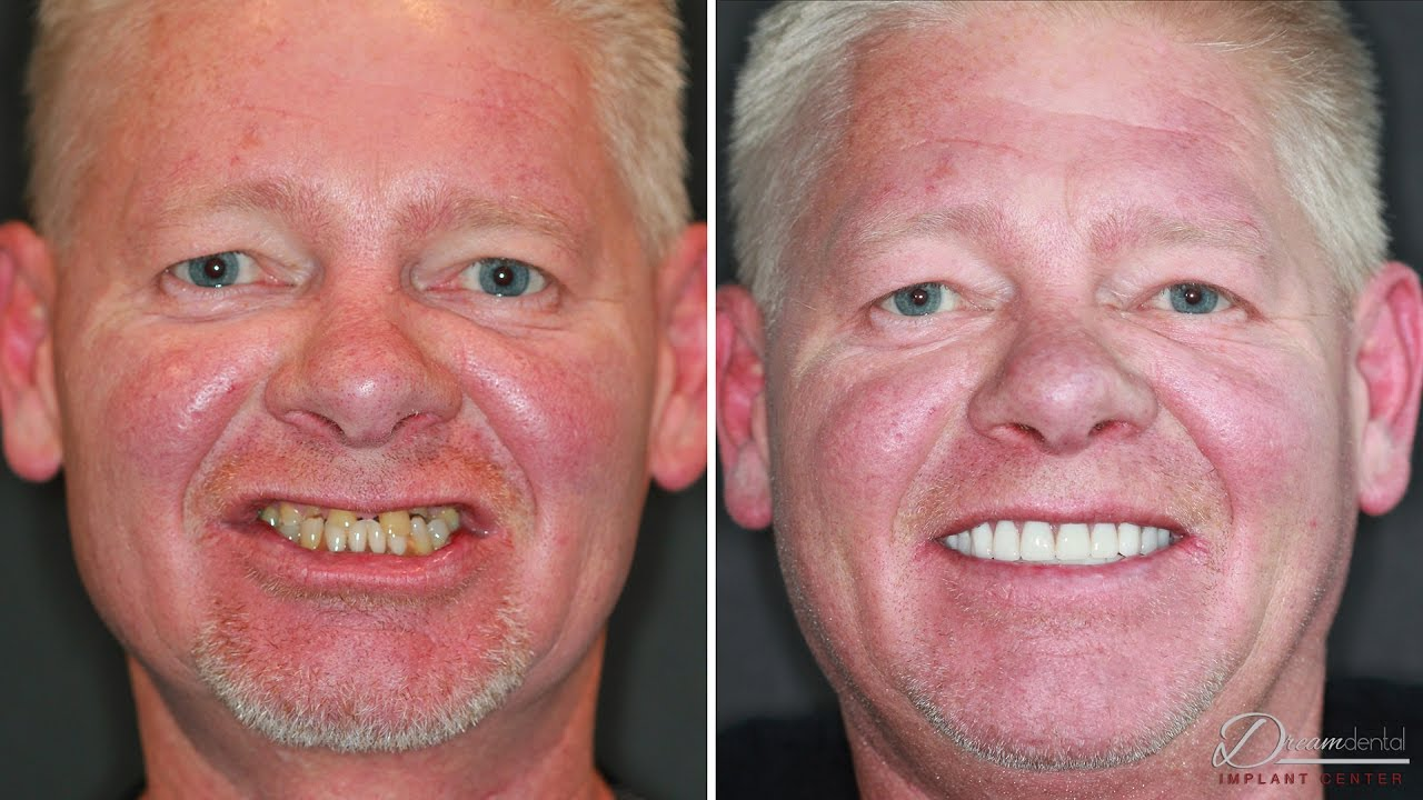 Dental implants review | Before and After Surgery - YouTube