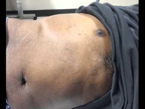 Diaphragmatic stimulation due to cardiac resynchronization therapy