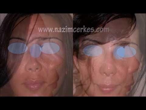 Dr Cerkes Istanbul  Bayan Revizyon Hastaları Öncesi Sonrası (Woman Revision Rhinoplasty)