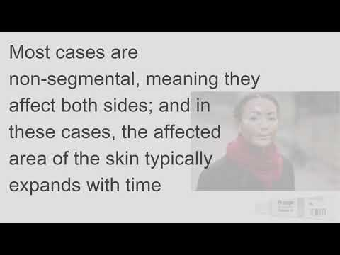 What is Vitiligo