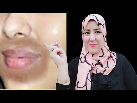 إزالة السواد حول الفم في دقائق ، النتيجة مبهررة كيفية إزالة السواد حول الفم