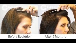 Haz tu Shampoo ANTICAÍDA, ANTICALVICIE, Efecto SEDA y Limpieza Profunda / DIY Hair loss Shampoo