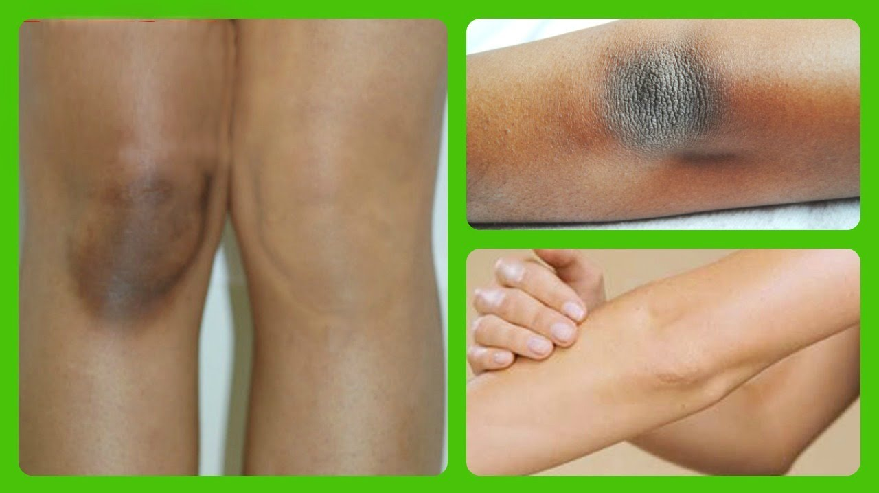 How To Get Rid Of Black Knees Naturally