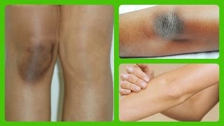 lighten dark knees and elbows quick naturally at home