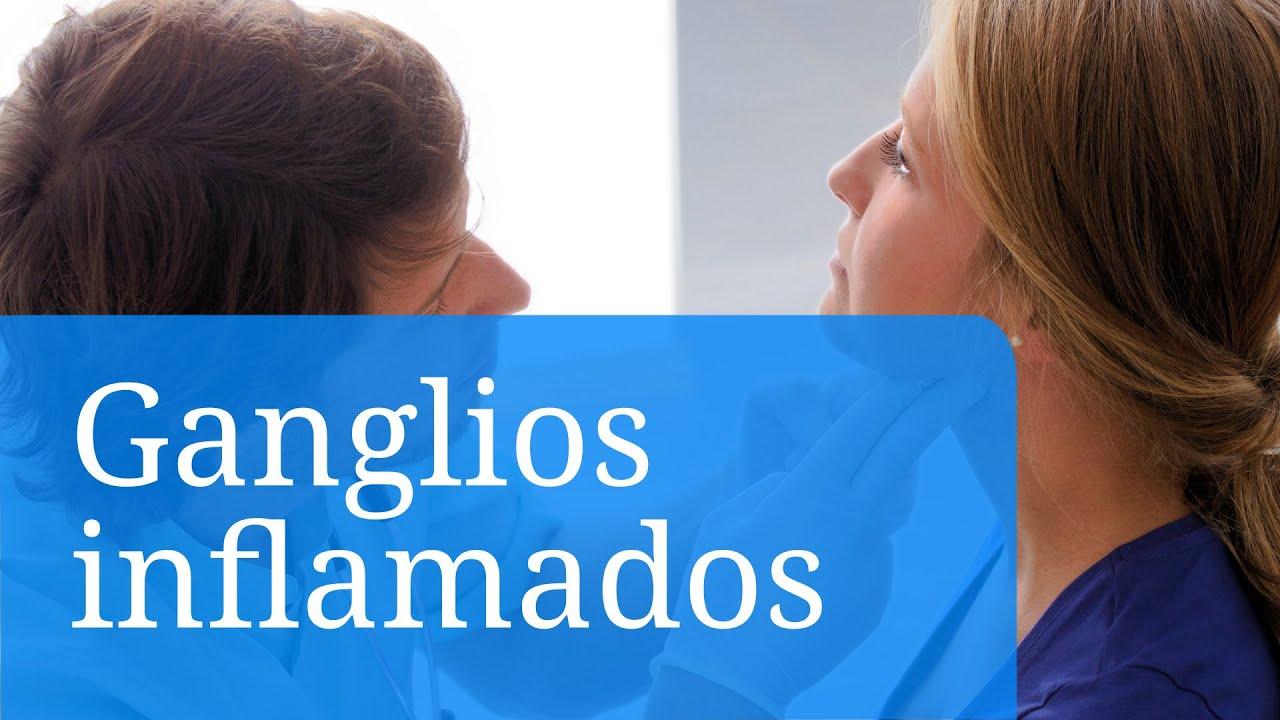 Inflamación de los ganglios linfáticos - Síntomas, causas y ...