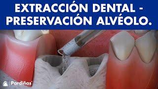 Extracciones dentales - Tratamiento para preservar el alvéolo ©